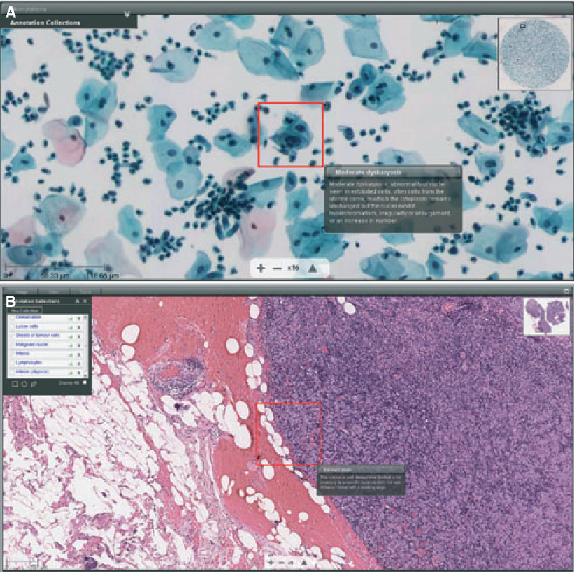Virtual microscopy and digital pathology in training and