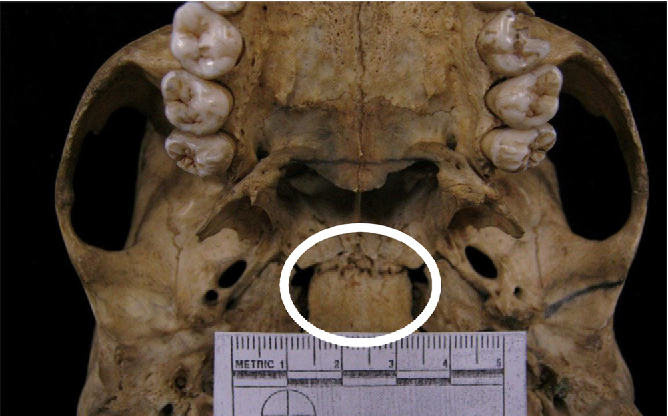 Figure 2 From Spheno Occipital Synchondrosis Examining The Degree Of Fusion In A South African Black Skeletal Sample Semantic Scholar The video provides a walkthrough of the foramen of the skull (cranial foramina), including the cranial nerves that pass through each foramen. figure 2 from spheno occipital