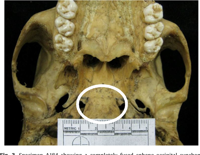Figure 3 From Spheno Occipital Synchondrosis Examining The Degree Of Fusion In A South African Black Skeletal Sample Semantic Scholar Moyers text book of orthodontics. figure 3 from spheno occipital