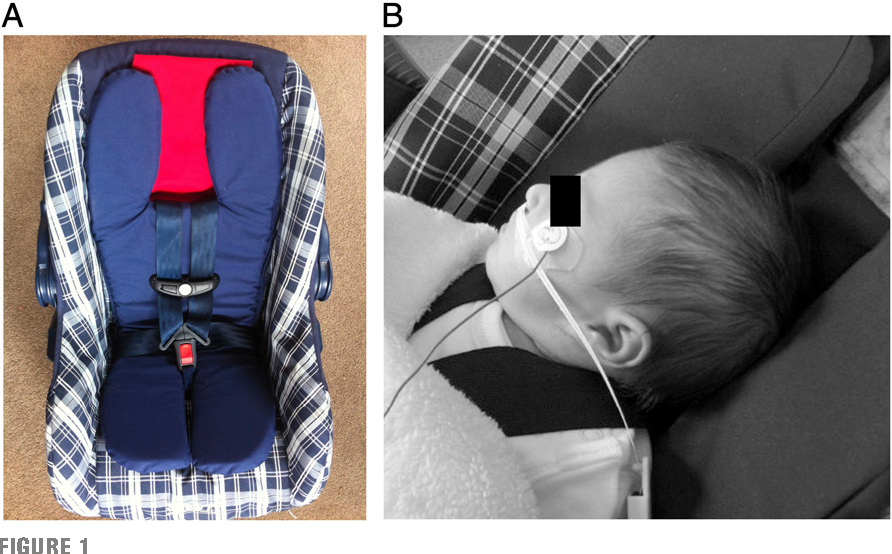 Figure 1 From Randomized Controlled Trial Of A Car Safety Seat Insert To Reduce Hypoxia In Term Infants Semantic Scholar