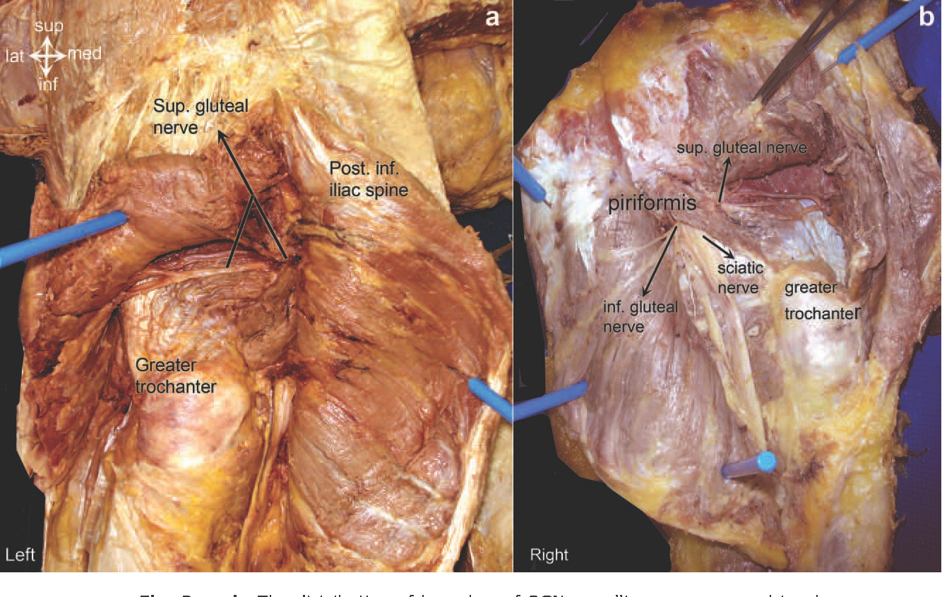 Surgical anatomy of the superior gluteal nerve and ...