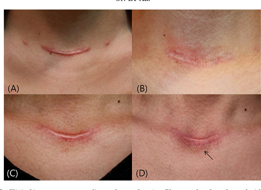 Figure 2 From Evaluating Hypertrophic Thyroidectomy Scar Outcomes After Treatment With Triamcinolone Injections And Copper Bromide Laser Therapy Semantic Scholar