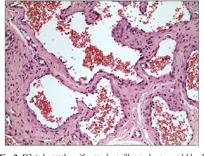 PDF] A Case of Sinusoidal Hemangioma with Lipoma - Semantic
