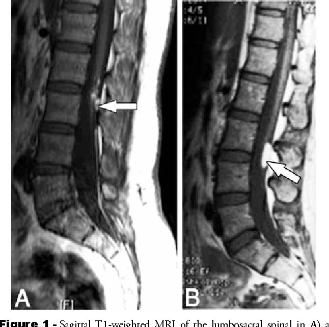 Figure 1 From Radiological Predictors Of Neurological Compromise In Adults With Filum Terminale Lipoma Semantic Scholar Mri shows grade 1 spondylolisthesis. filum terminale lipoma semantic scholar