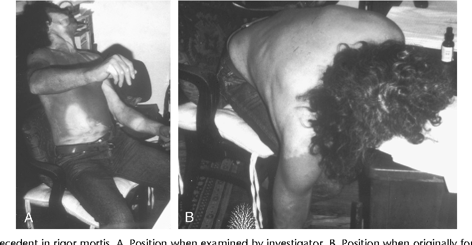Figure 4 from Putrefactive rigor: apparent rigor mortis due