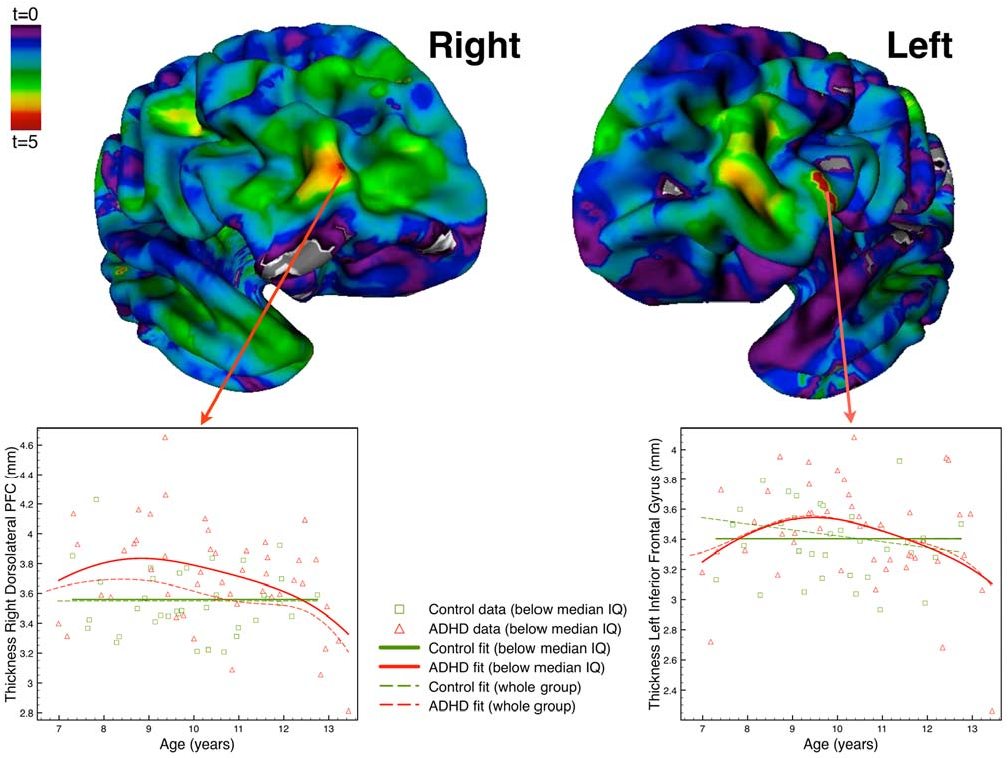 Brain Differences In Adhd >> Figure 2 From Differential Brain Development With Low And