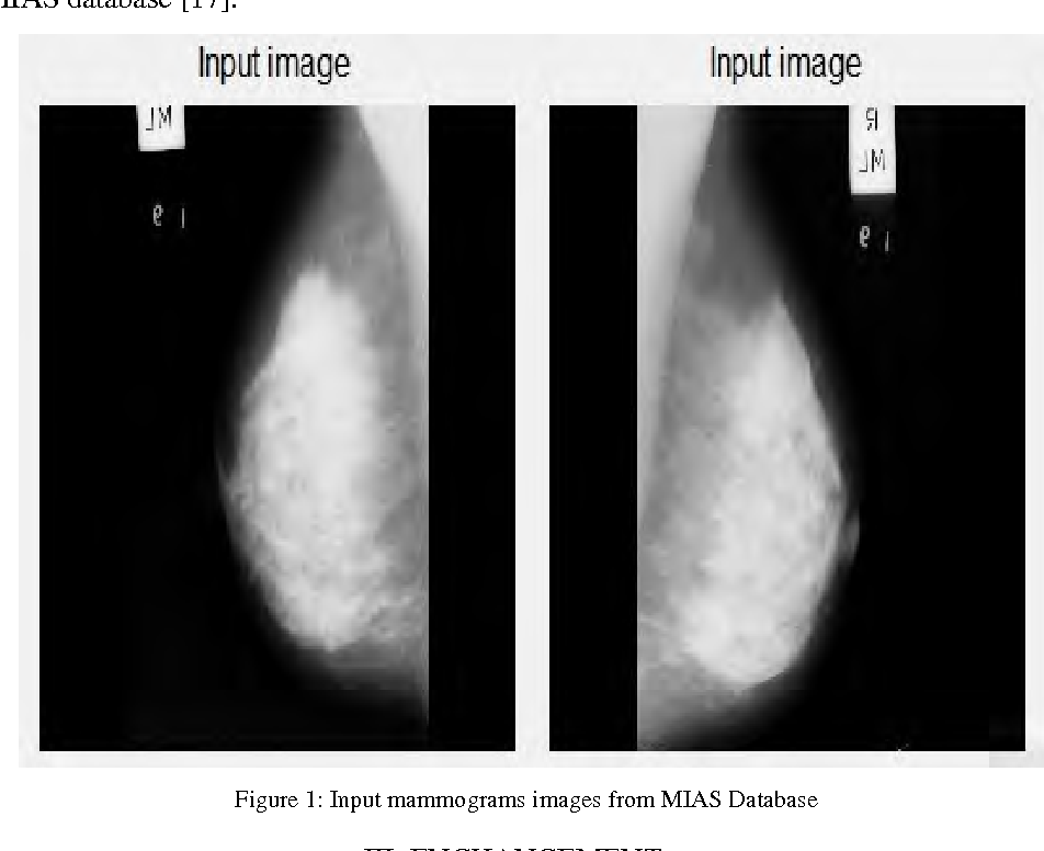 Figure 1 From Diagnose Breast Cancer Through Mammograms Using