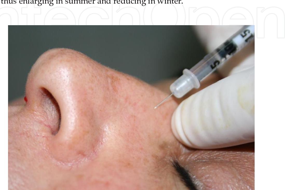PDF] Botulinum Toxin in the Nasal Area - Semantic Scholar