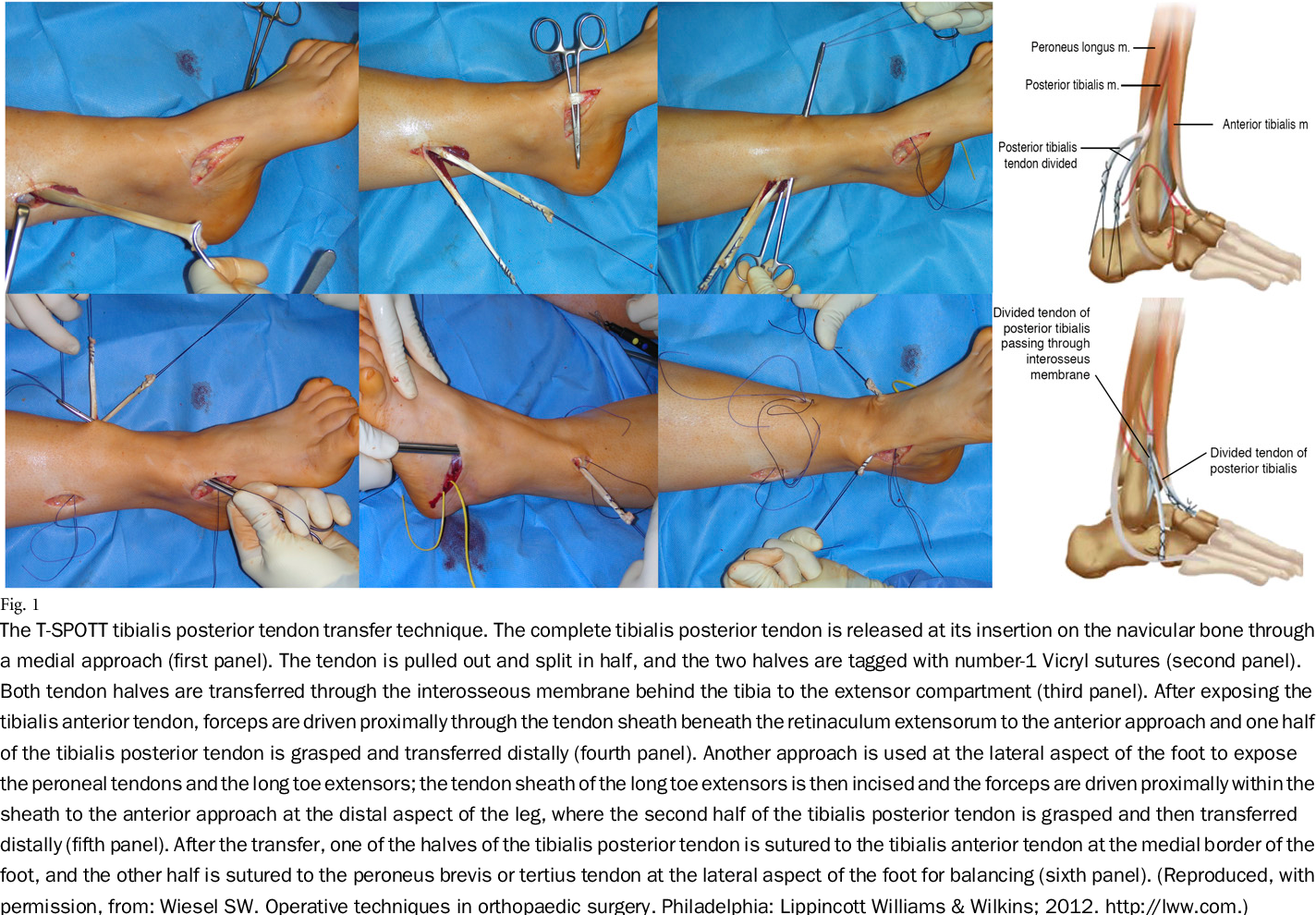Figure 1 From Tibialis Posterior Tendon Transfer Corrects The Foot