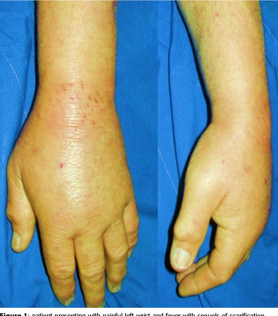 Septic Arthritis Of The Wrist About Six Cases Semantic Scholar