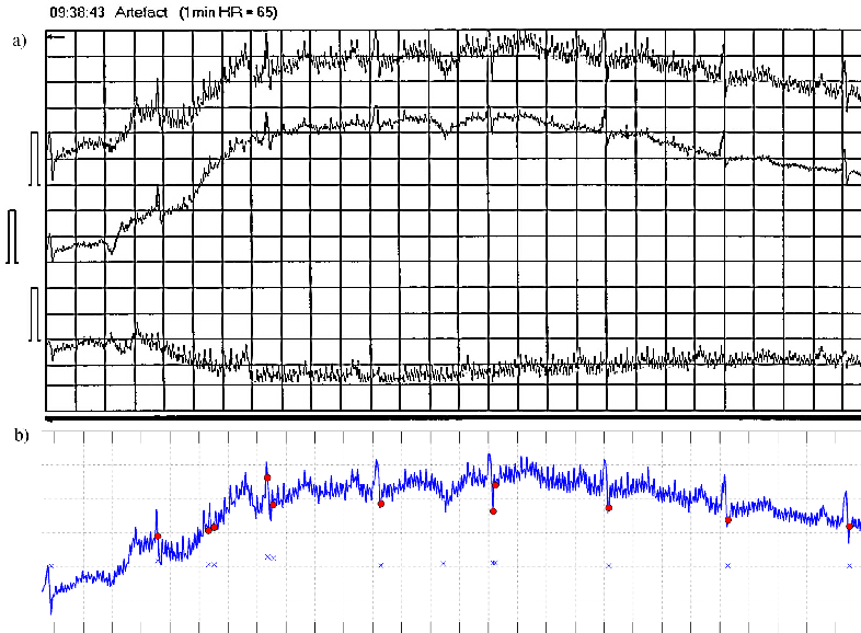 Figure 5 from QRS complex detection in noisy holter ECG
