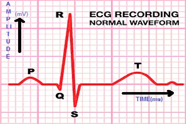 Figure 1 from Noise elimination and ECG R peak detection