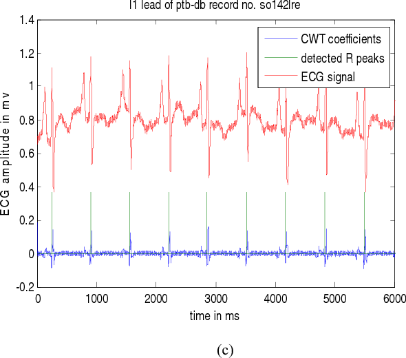 Figure 4 from Noise elimination and ECG R peak detection