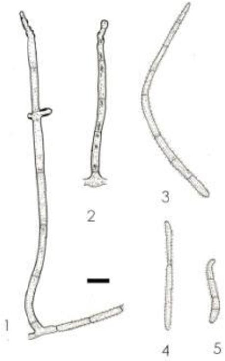figure 152