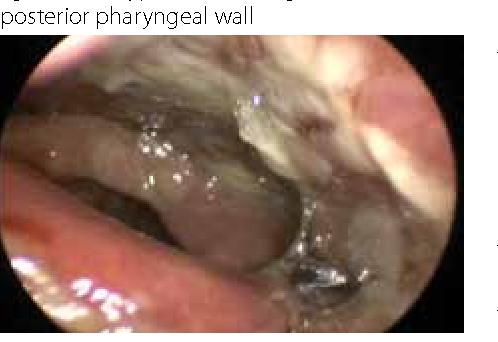 Laryngitis chronische Chronische Laryngitis: