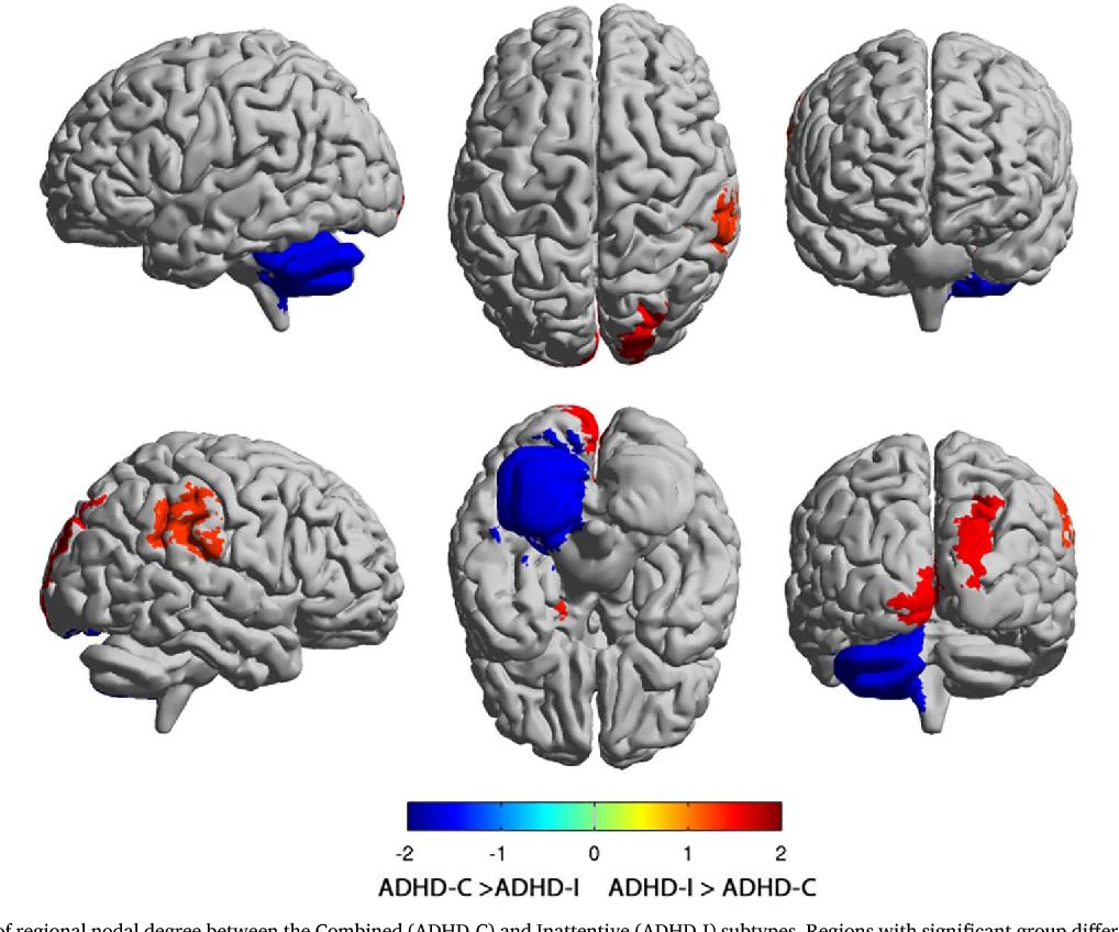 Adhd Real Brain Disorder Or Further >> Figure 2 From Regional Brain Network Organization