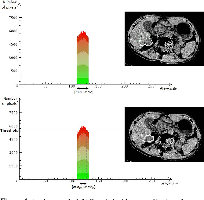 Figure 4 from 3D reconstruction from CT-scan volume dataset