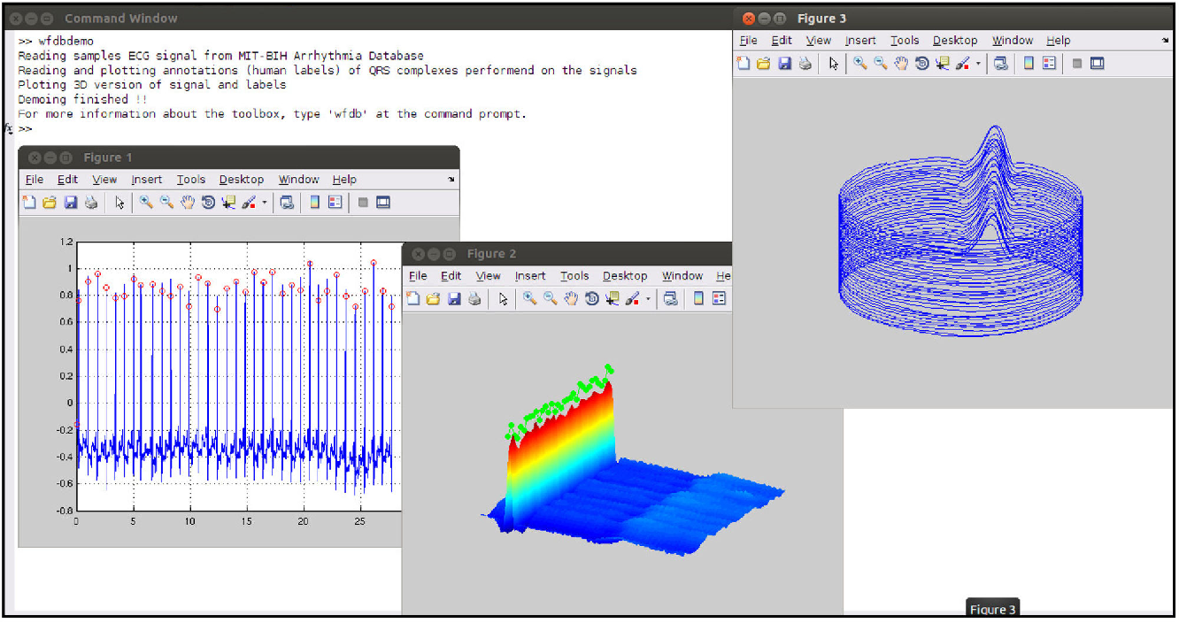 Figure 1 from An Open-source Toolbox for Analysing and