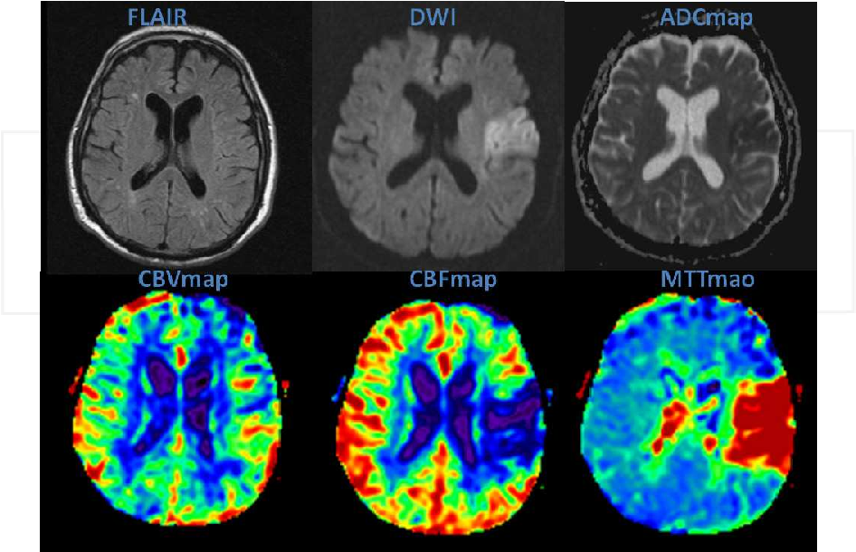 Figure 4 from 20 Non-Conventional MRI Techniques in