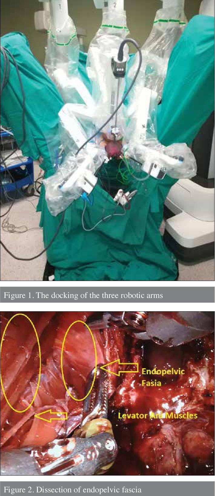 Pdf Robotic Perineal Radical Prostatectomy And Robotic Pelvic