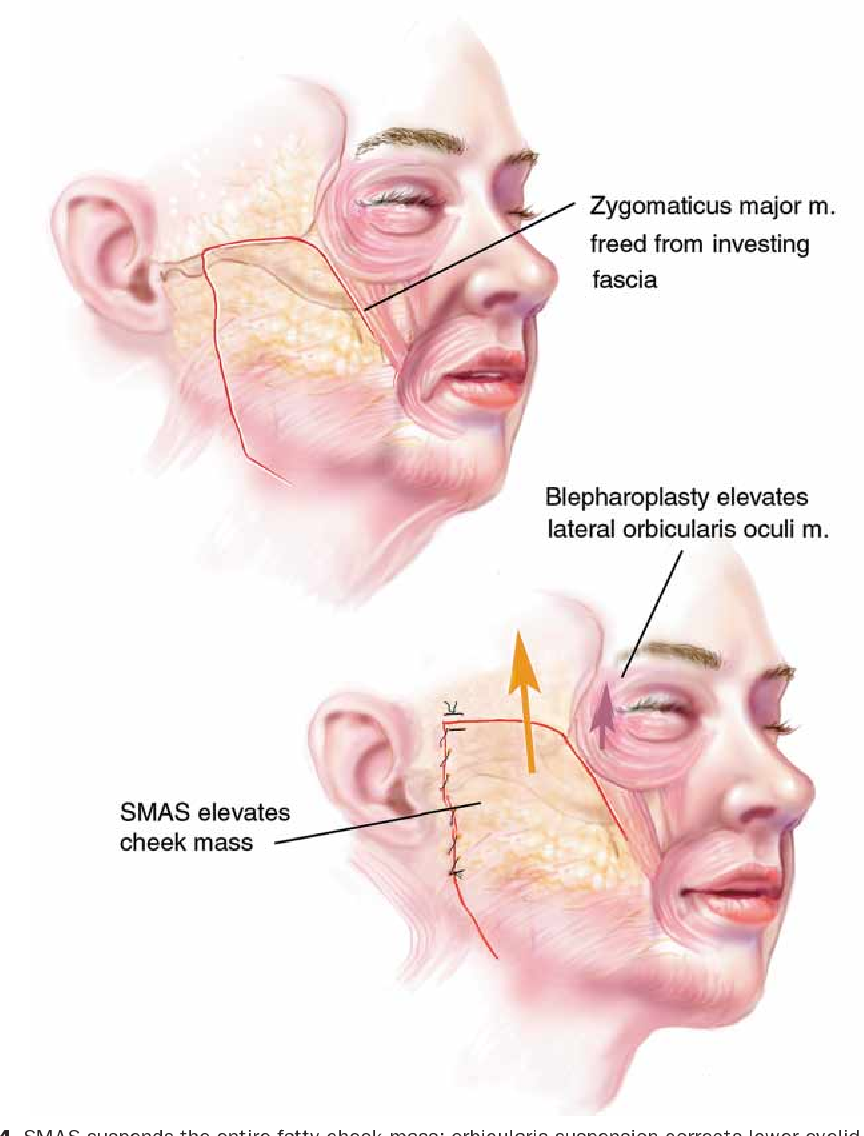 """Figure 4 from The """"high SMAS"""" face lift technique ..."""
