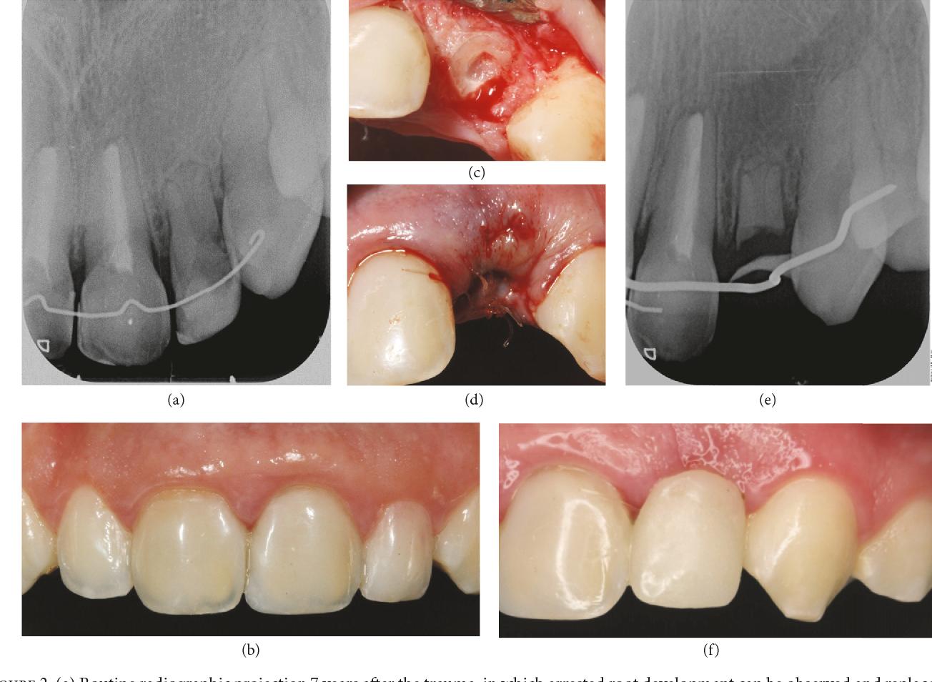 Figure 2 from Decoronation: An Alternative Treatment for