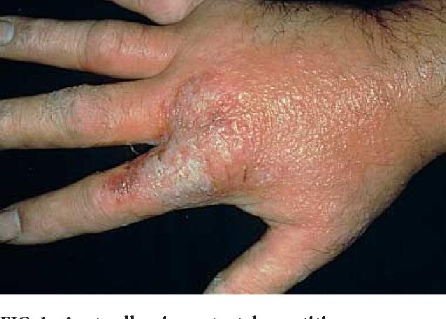 Therapeutic options for chronic hand dermatitis  - Semantic