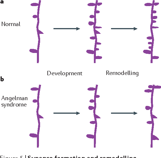 Figure 1 from Angelman syndrome — insights into a rare
