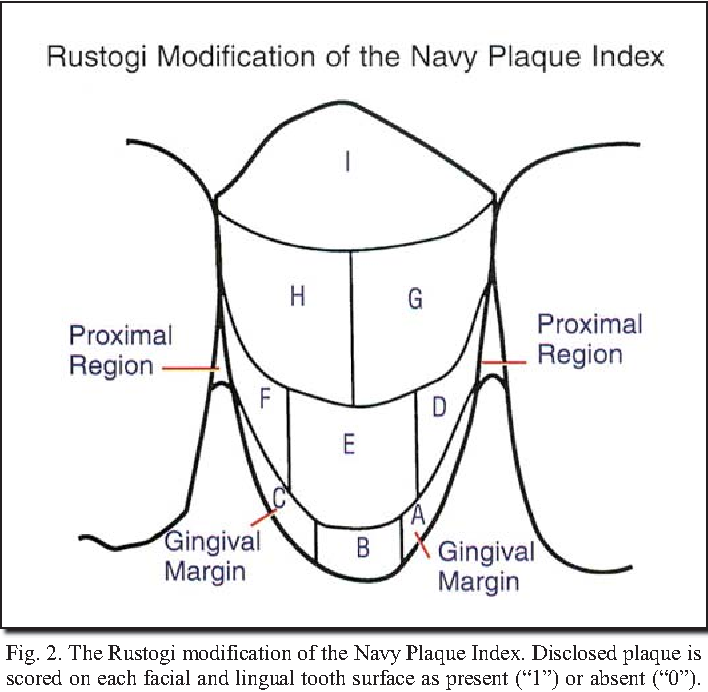 PDF] A randomized clinical trial evaluating gingivitis and plaque ...