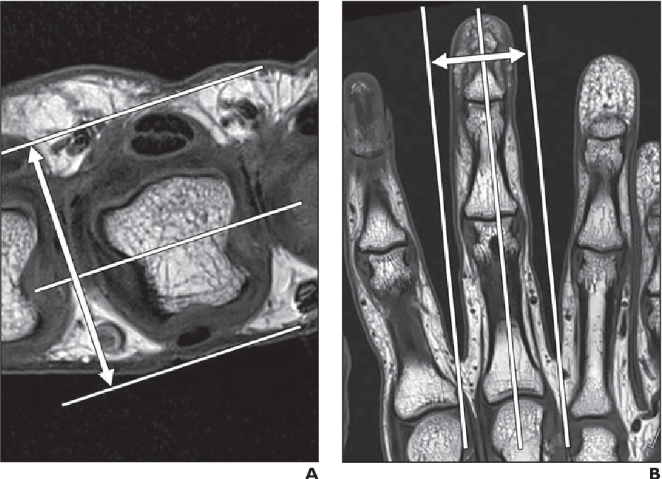 Figure 1 from High-resolution 3-T MRI of the fingers: review