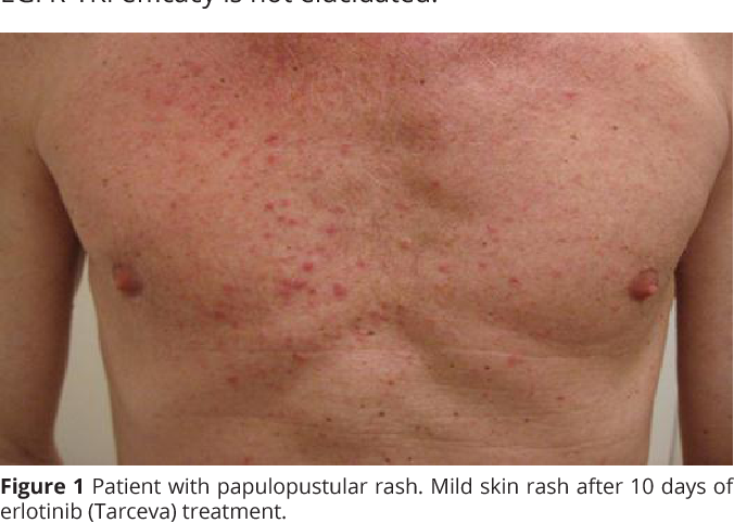 Figure 1 From Skin Rash In Patients Treated With Neoadjuvant Erlotinib Tarceva In Resectable Non Small Cell Lung Cancer Predictor For Tumor Response And Survival Semantic Scholar