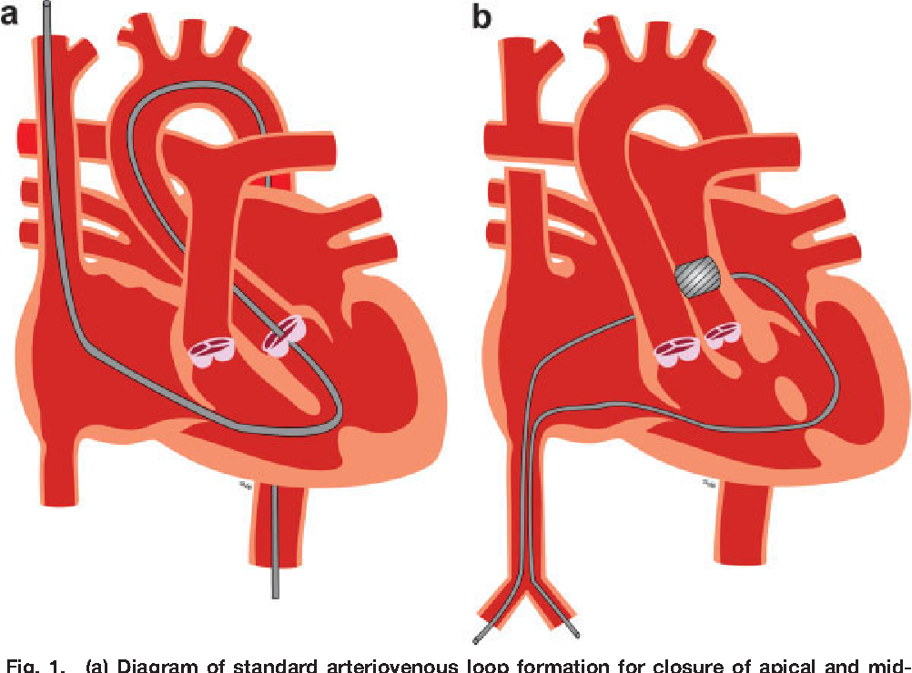 Figure 1 From Novel Method For Delivering The Amplatzer Muscular Vsd Occluder In A Patient With Double Outlet Right Ventricle After Bidirectional Glenn Procedure And Pulmonary Artery Band Semantic Scholar