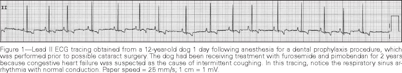 Figure 1 from ECG of the month  Intermittent tachycardia