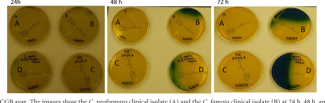 False-positive reaction of L-canavanine glycine bromothymol