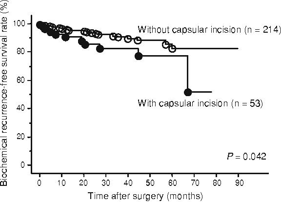 Adverse Prognostic Impact Of Capsular Incision At Radical
