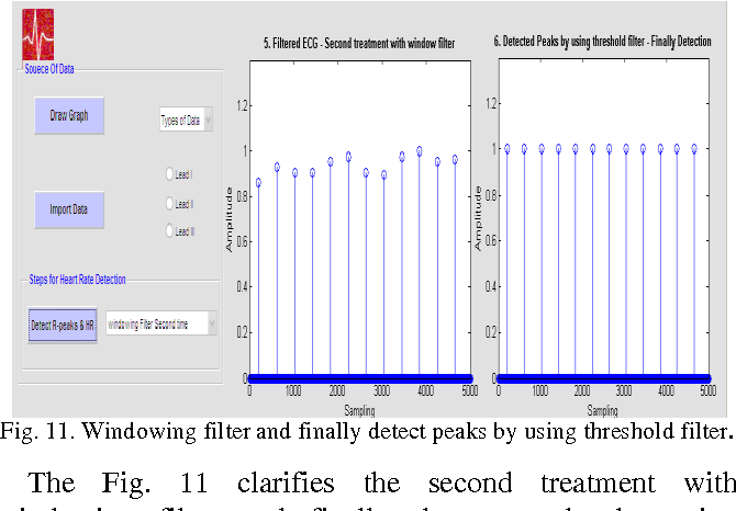 Figure 11 from Heart Rate Monitoring and PQRST Detection