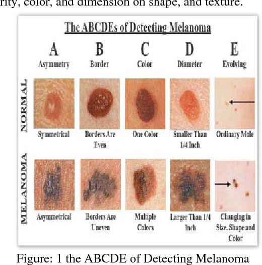 Pdf Automated Segmentation Of Microscopy Imaged Melanocytic Lesions And Classification Semantic Scholar