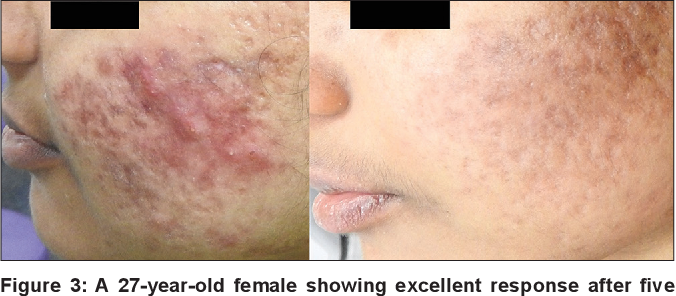 Intense Pulsed Light Therapy For Acne Induced Post Inflammatory Erythema Semantic Scholar