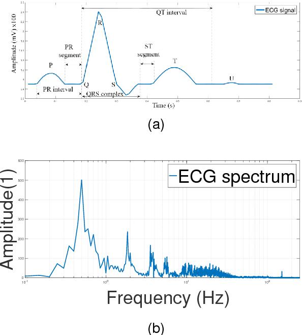Denoising ECG signals by applying discrete wavelet transform