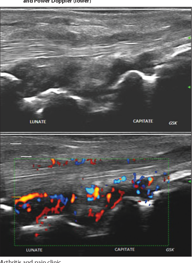 Figure 1 From The Role Of Diagnostic Ultrasound Of Hands And Feet In The Patients With Rheumatoid Arthritis Semantic Scholar