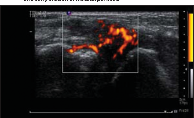 Pdf The Role Of Diagnostic Ultrasound Of Hands And Feet In The Patients With Rheumatoid Arthritis Semantic Scholar