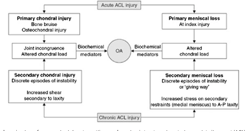 Figure 1 from Articular and meniscal pathology associated