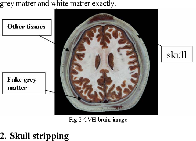 Chinese Visible Human Brain Image Segmentation - Semantic