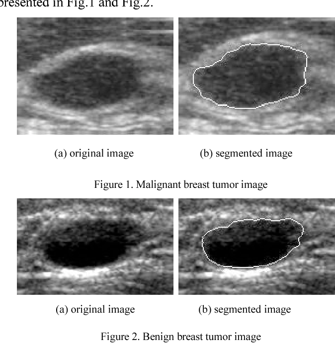 Textural Feature Analysis For Ultrasound Breast Tumor Images