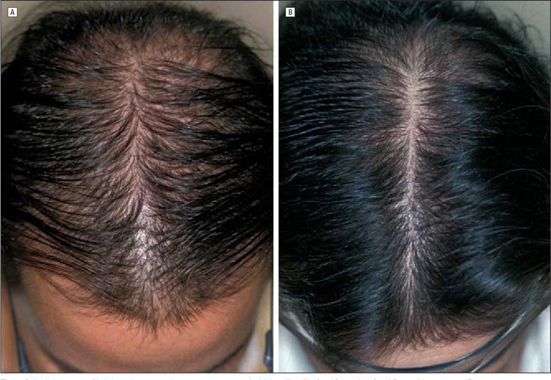 Figure 2 From Finasteride Treatment Of Female Pattern Hair Loss Semantic Scholar