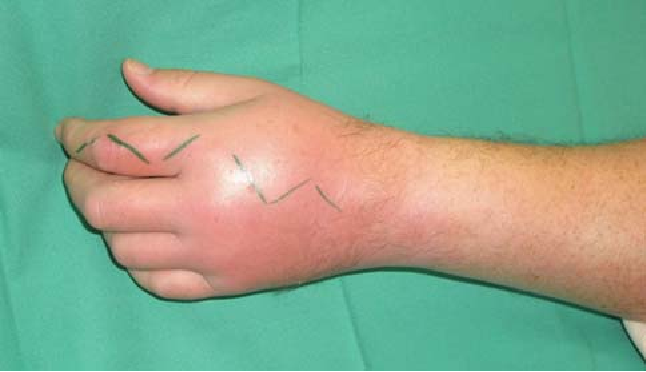 Figure 2 From An Unusual Case Of Gonococcal Arthritis Of The Finger Semantic Scholar