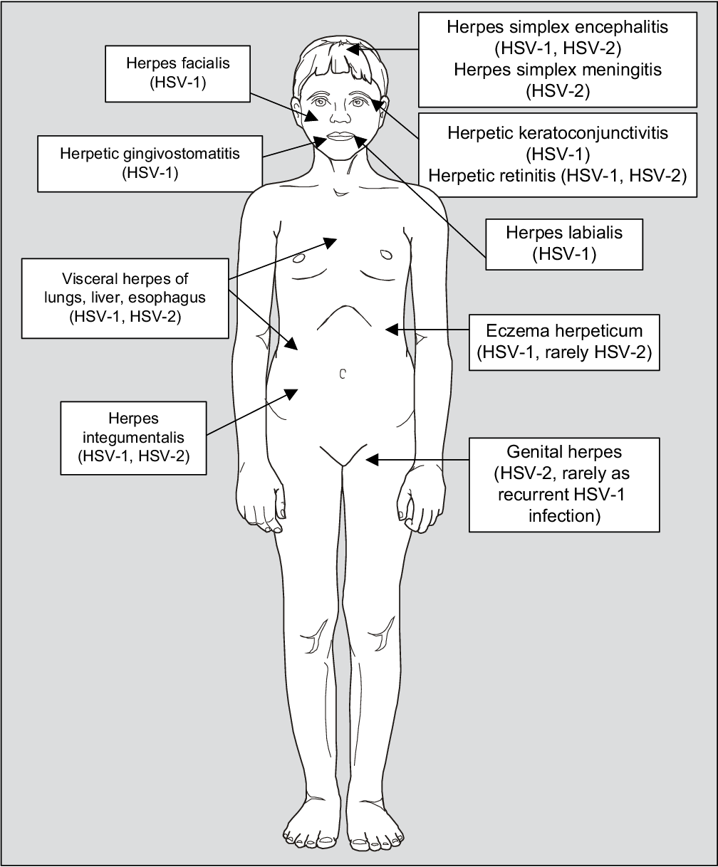 Figure 2 From Optimal Management Of Genital Herpes Current Perspectives Semantic Scholar