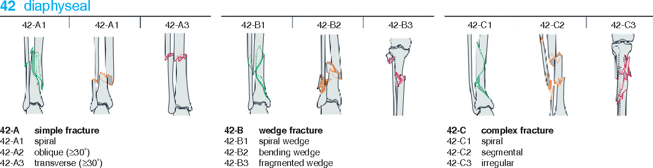 Figure 1 from Tibial shaft fractures - management and