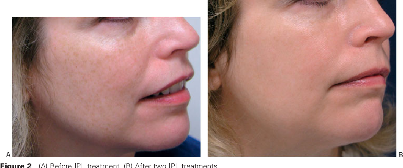 Figure 2 from A paradigm for facial skin rejuvenation