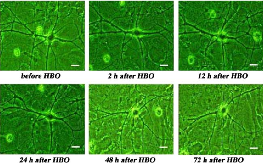 Fig. 2 Morphological changes of an selected neuron before and after 120 min HBO exposure at 500 kPa. Obvious morphological changes indicating damage are observed till to 48 h after exposure. The bar means 10 lm